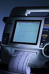 Monitor zur überwachung der Herzfrequenzen