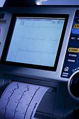 Herzfrequenzüberwachung auf Monitor